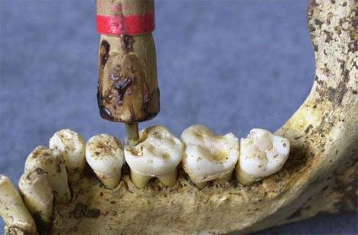 Древние инструменты стоматологов КУРЬЕЗЫ